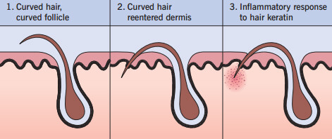Prevent hair growing under skin